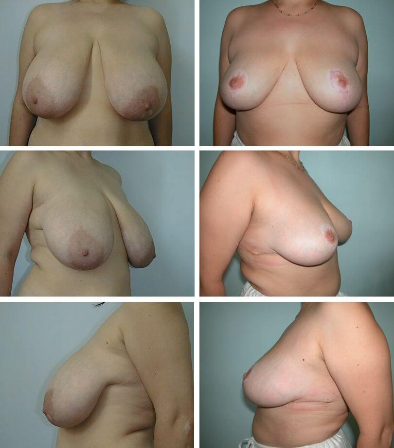Breast Reduction Richmond Va Breast Reduction Surgery